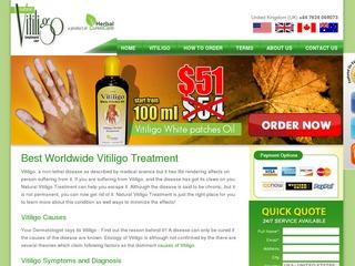 Natural Vitilig